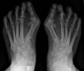 Radiographies d'hallux valgus